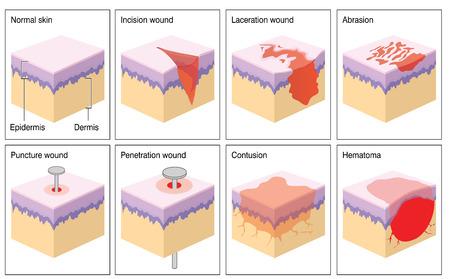 penetracion: Vaus tipos de herida de la piel que se muestran como una ilustración 3d de la epidermis y la dermis de la piel