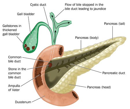 bile: The pancreas and duodenum showing the gallbladder containing gallstones