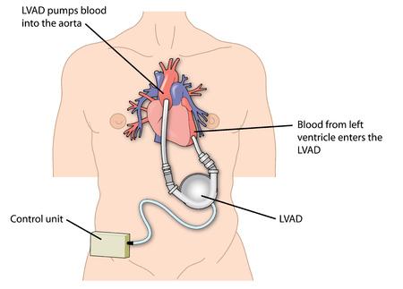 左心室は、心臓や大動脈の心室に接続されたデバイスを支援します。 写真素材