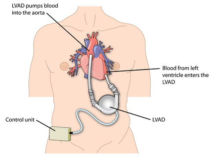 Left ventricular assist device attached to the left ventricle of the heart and the aorta