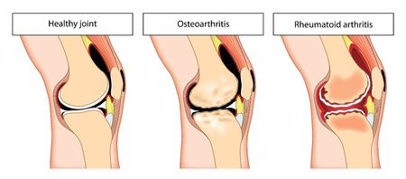 osteoarthritis: A normal knee joint and the changes due to osteoarthritis and rheumatoid arthritis showing swelling, inflammation and bone changes