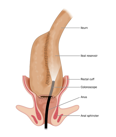 Reservoir formed from a portion of the ileum following removal of the rectum Stock Photo