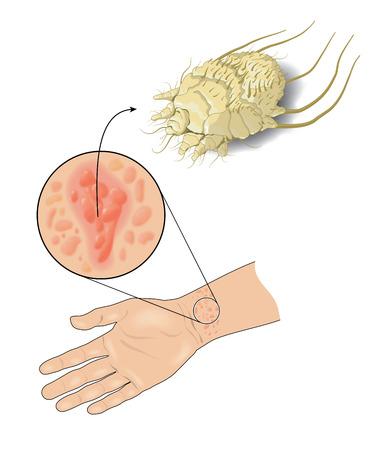 Pimple-achtige uitslag op de huid veroorzaakt door infecties van schurftjes