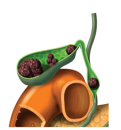 Gallstones in gallbladder and bile duct 스톡 콘텐츠