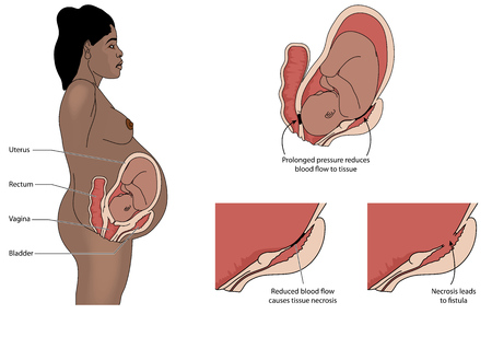 Fistula between bladder and uterus or vagina and rectum and uterus caused by prolonged labour in a pregnant woman Illustration