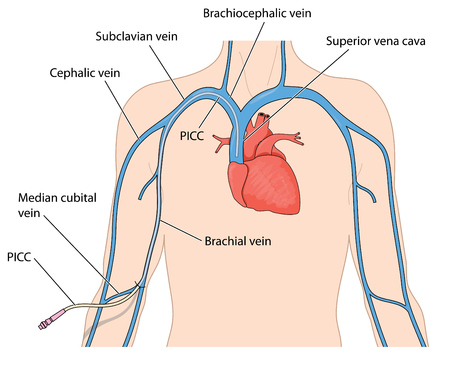 Catheter line (PICC) inserted into the superior vena cava from a peripheral vein in the arm Illustration