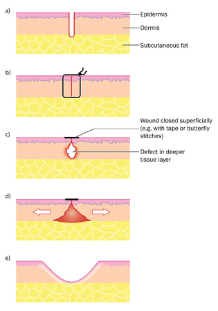 Skin wound closed cleanly with suture and deep tissue defect after closure with tape or butterfly stitch.