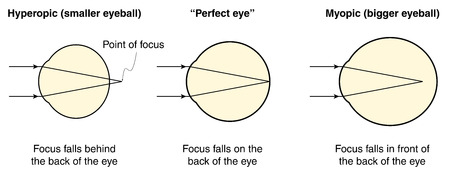 Hyperopic, normal and myopic eyes and how eye size affects vision 向量圖像