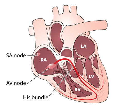 The heart showing the electrical conducting system consisting of the SA node, the AV node, His bundle and Purkinje fibres Vettoriali