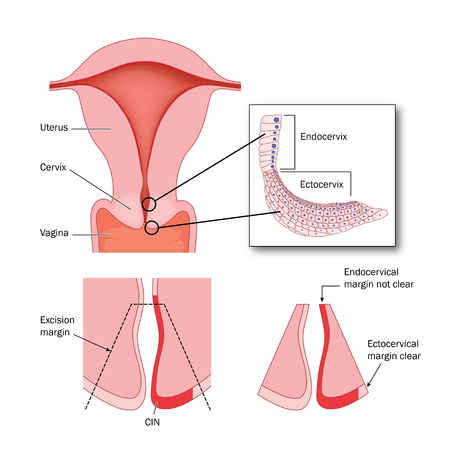 Cone biopsy of cervix to remove areas of abnormal cells in the ectocervix. Illustration