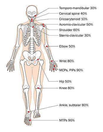 Sites of rheumatoid arthritis and relative frequency. Ilustrace
