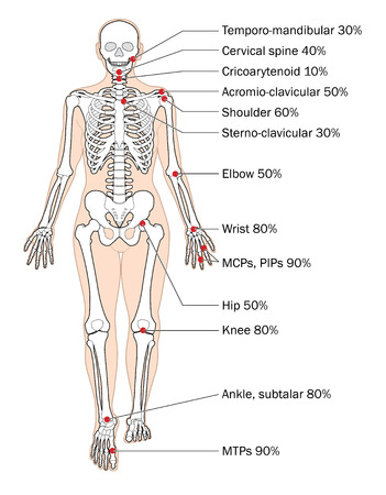 Sites of rheumatoid arthritis and relative frequency. Illustration