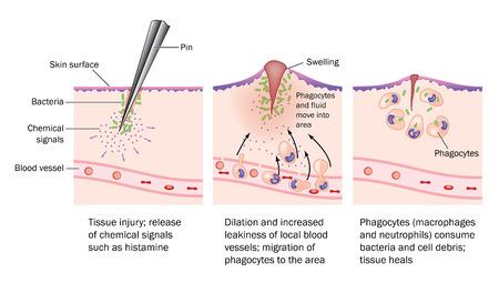 Het proces van verwonding, resulterende ontsteking en resolutie. Vector Illustratie