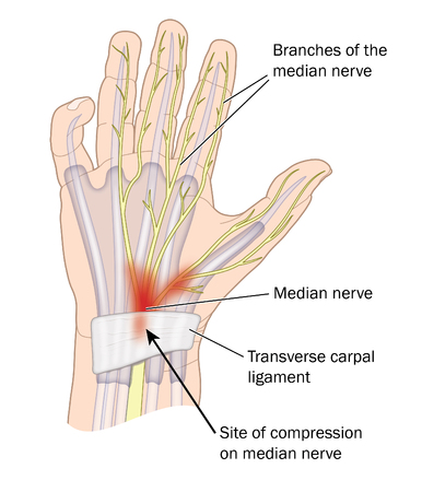 Miejsce kompresji nerwu średniego w zespole cieśni nadgarstka.