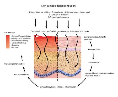 Faktoren, die an Beschädigungen und Entzündungen der perinealen Haut beteiligt sind. Standard-Bild - 81388764