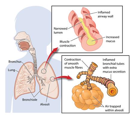 천식 발작 중 폐에 공기가 흘러 나와 공기가 갇혀있는 것을 보여주는 단면도.