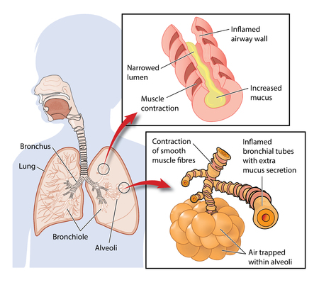 Cross section through the lungs showing inflamed airway and trapped air in the alveoli during asthmatic attack. Illustration