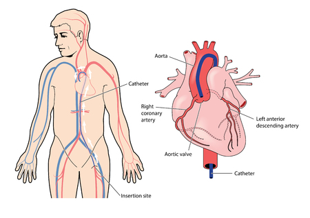 カテーテル大動脈弁にあるヒントと大腿動脈に挿入します。