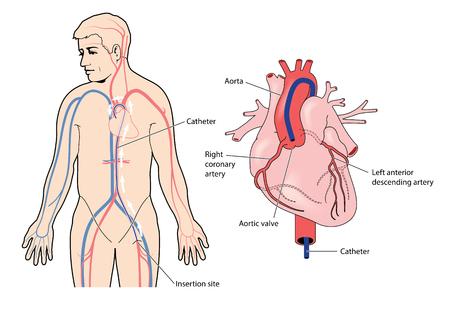 Katheter geplaatst in de femorale slagader met de punt die bij de aortaklep bevindt. Stock Illustratie