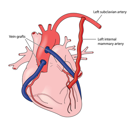 Coronary artery grafts, using veins and the left internal mammary artery Illustration