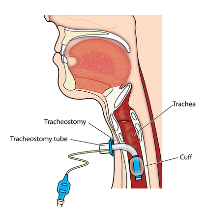 Tracheostomy tube in-situ, showing location of the outer cannula and inflated cuff within the trachea.