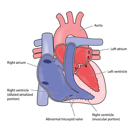 Heart showing Ebsteins heart anomaly, with enlarged right atrium and abnormal tricuspid valve.