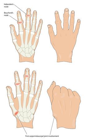 De knooppunten van Heberden en Bouchard in osteoartritische handen