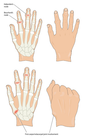 Heberdens and Bouchards nodes in osteoarthritic hands Illustration