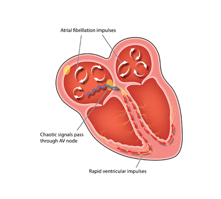 Chaotic signals in the heart with atrial fibrillation, chaotic signals through the AV node and rapid ventricular impulses