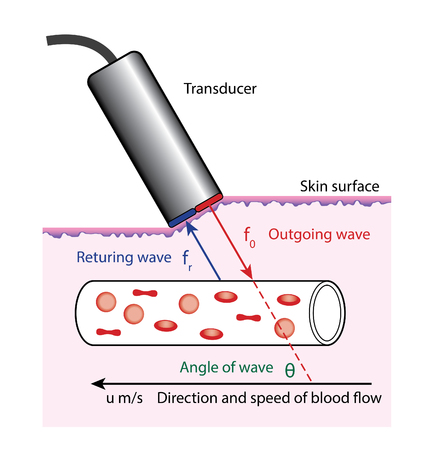 Diagram of Doppler blood flow measurement, showing the transducer on the surface of the skin.