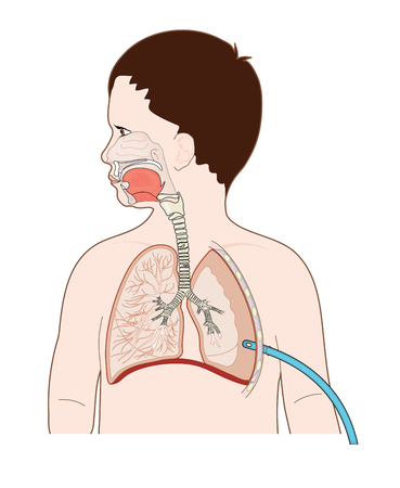Tube inserted into pleural space to drain fluid, blood or air from the lung. Illustration