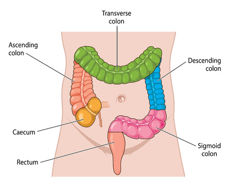 The large intestine, colored coded for the main areas, from the caecum to the rectum