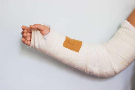 broken arm of a little girl, in cast Foto de archivo