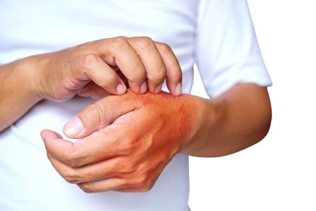 Health care concept. Itching of skin diseases in men using the hand-scratching. Red around the Itching area. Stock Photo