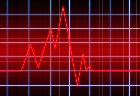 electrocardiograph: Heart pulse graphic. Stock Photo