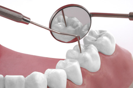 Dental control in the model photo