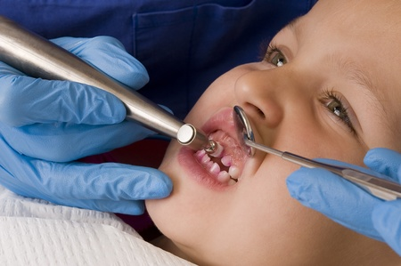 caries: dentist Stock Photo