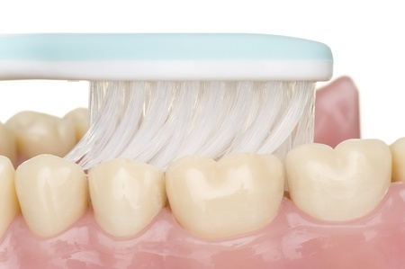 bacterial plaque: oral hygiene Stock Photo