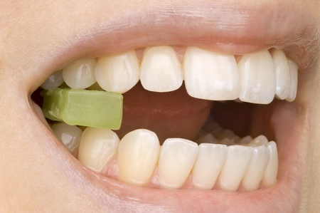 discolorations: dentist Stock Photo