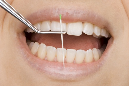 bacterial plaque: dentist Stock Photo
