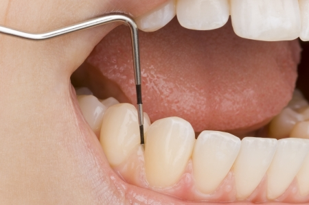 tartar: dentist Stock Photo