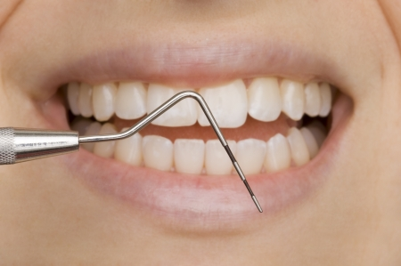 dental calculus: dentist Stock Photo