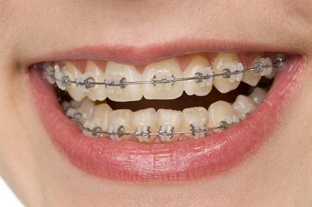caries dental: higiene oral Foto de archivo