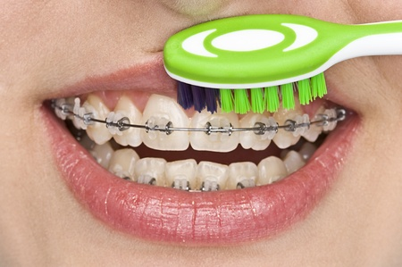 bad teeth: oral hygiene Stock Photo