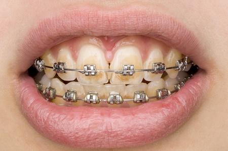 bad teeth: bad oral hygiene Stock Photo