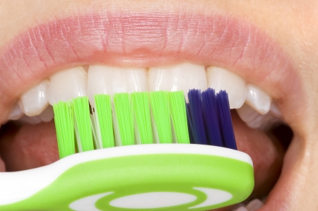 dental calculus: oral hygiene Stock Photo