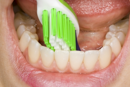 periodontitis: oral hygiene Stock Photo
