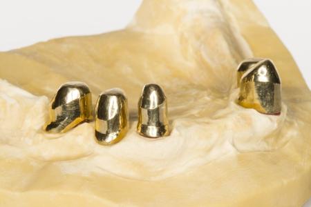 implantology: implant