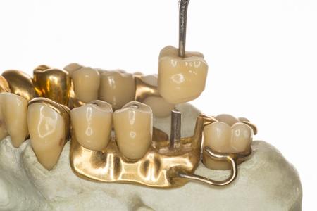 laboratorio dental: dentadura 1950
