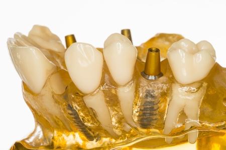 denture: implant
